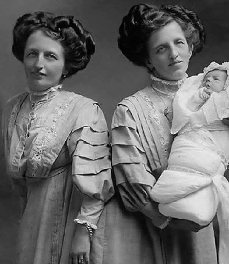 Сиамские близнецы Роза и Жозефа Блажек со своим сыном Францем, 1910 год, Прага